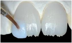 porselen-laminalar-1