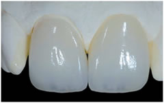 porselen-laminalar-4