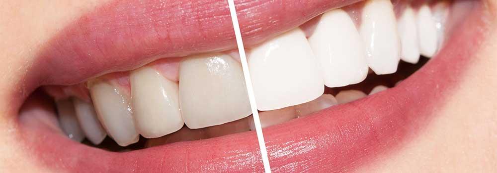 Виды отбеливания зубов сравнение